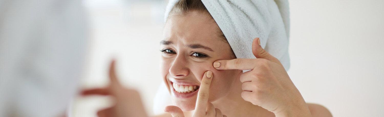 Akne bei Erwachsenen